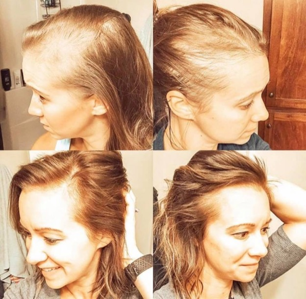4 image collage of a woman's before and after hair growth. First two images there is a lot of hair loss, the second two images show her hair grown in.