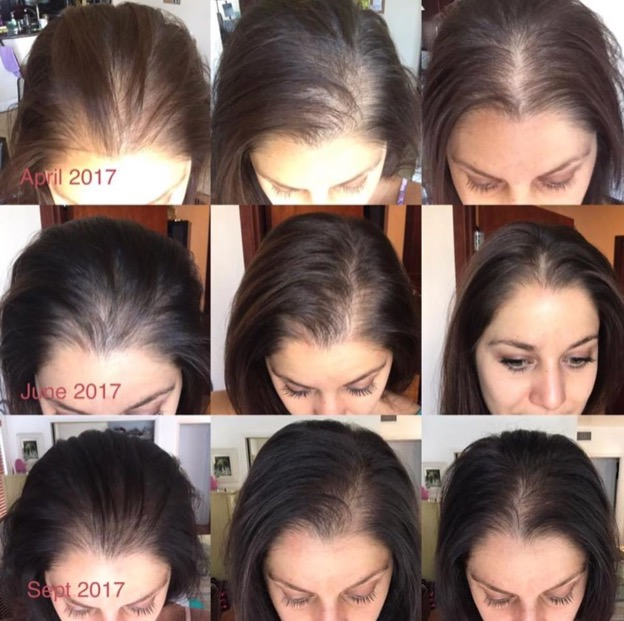 9 image collage of a woman's hair growth progress from April 2017 to June 2017 to September 2017.