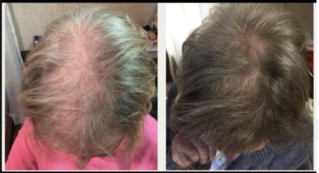 A before and after shot of the top of a woman's head showing her hair regrowth.