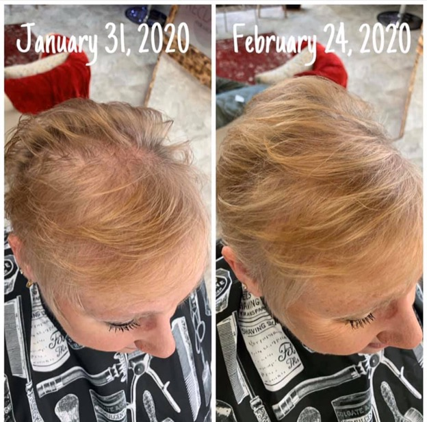 A before and after shot of a woman's hair regrowth from January 31, 2020 to February 24, 2020.