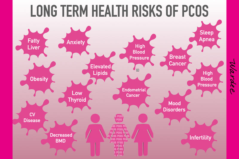 Diagram showing the long-term health risks of PCOS, including fatty liver, anxiety, and obesity.