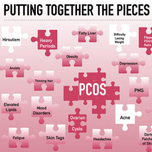Graphic of jigsaw puzzle pieces labeled with the signs and symptoms of PCOS, including hirsutism, heavy periods, anxiety and more.